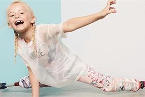 Holčička bez nohou si splnila sen a stala se modelkou. Je skvělá!