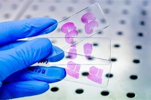 Histologie a cytologie: Víte, k čemu tato vyšetření slouží?
